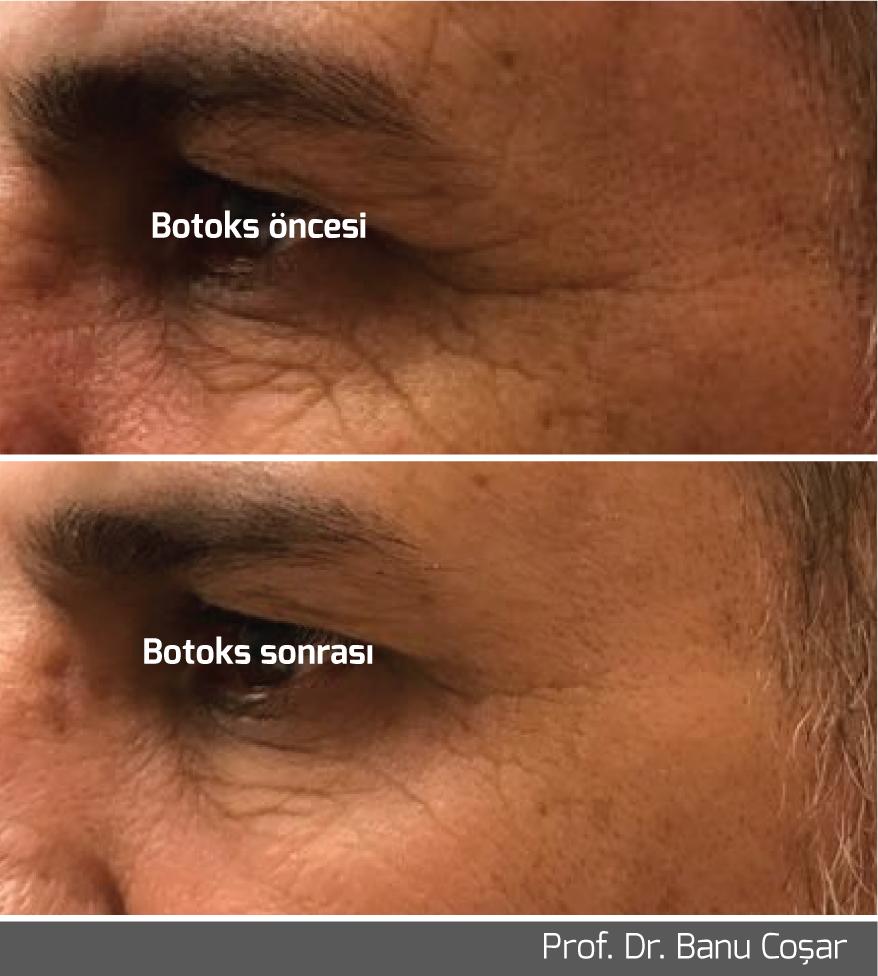 Gözlerin altındaki kırışıklıkları nasıl temizleyebilirim