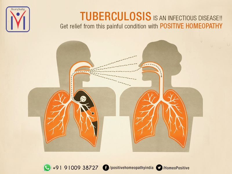 Tuberculosis is an infectious disease!! Get relief from this