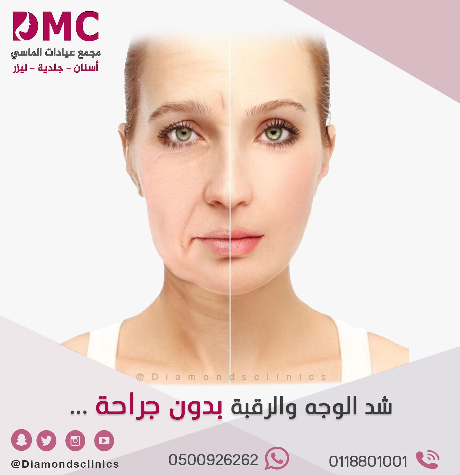 تعد الخيوط التجميليه من الإجراءات التى تحافظ على ملامح الوجه التعبيريه الطبيعيه يمكن رفع الحاجبين رفع الخدود ازاله الخطوط حول الفم شد البشرة