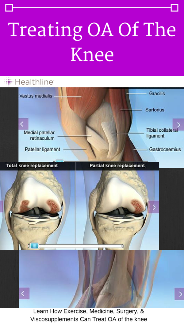 Use this interactive anatomy slideshow to see the areas of the knee ...