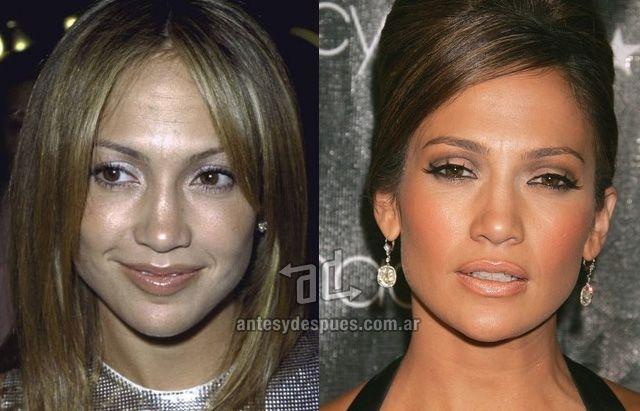 Pin On Celebrities Plastic Surgery
