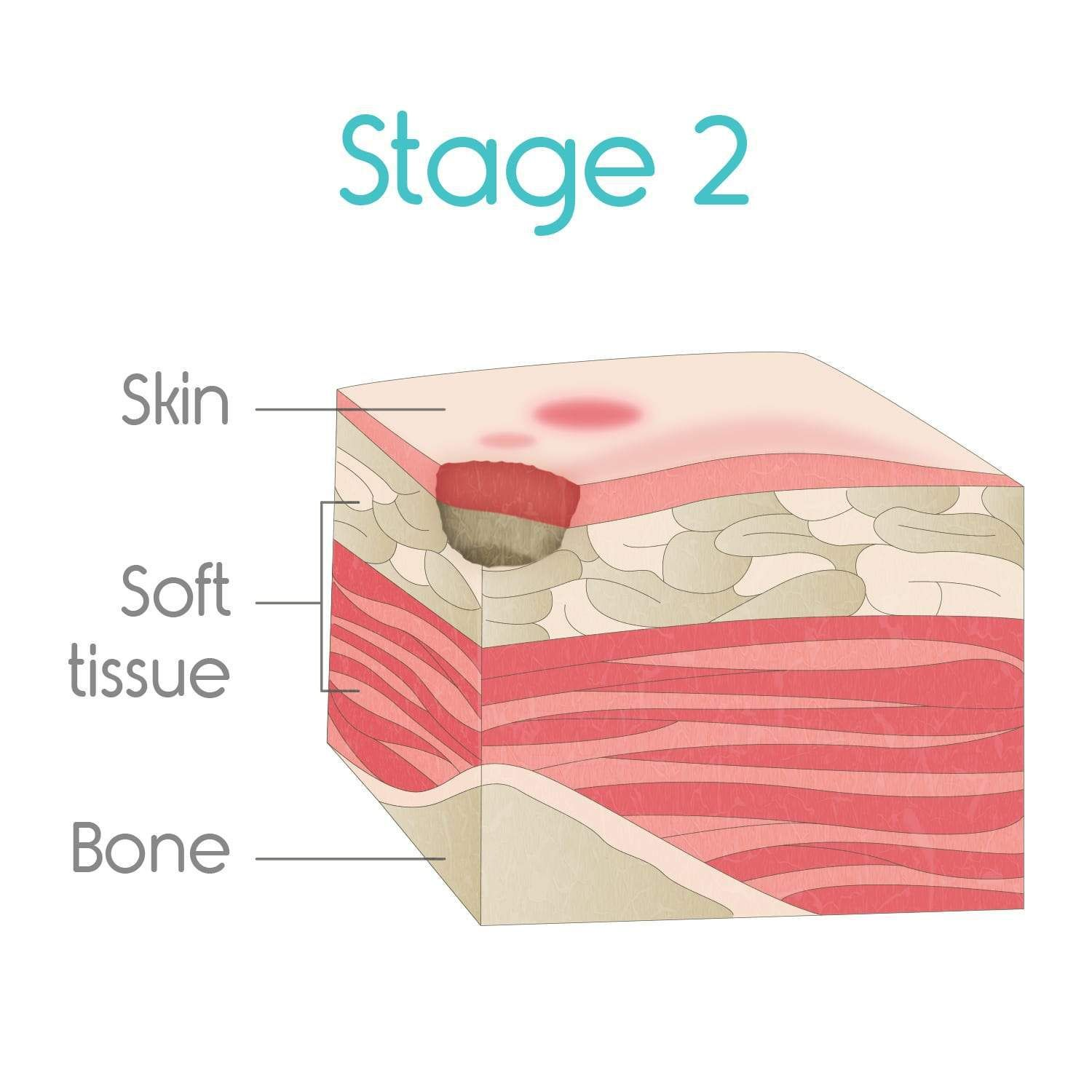 stage two bed sores Bed sores, Soreness, Pressure ulcer