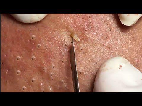 Tokyo Acne Treatment Blackhead Extractions Part 1   Zitz