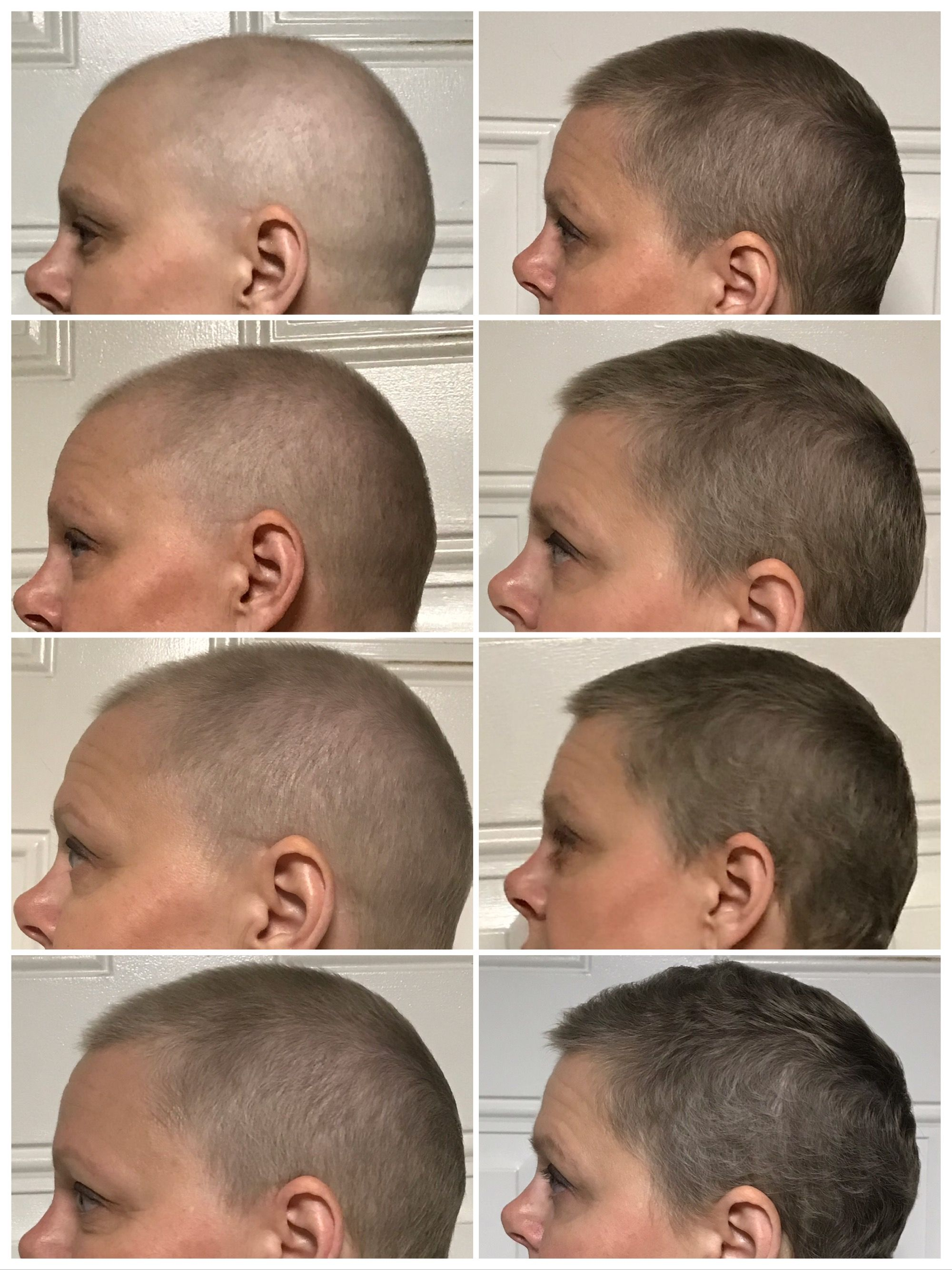 After chemo hair growth. Weeks 3-3  Chemo hair, Hair growth after