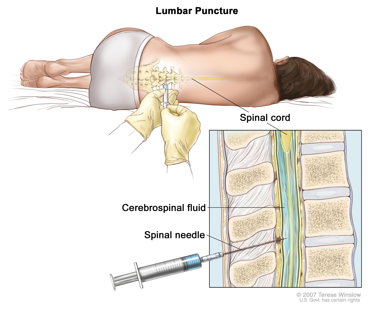 Adult Acute Myeloid Leukemia Treatment (PDQ®) (Patients | Pinterest