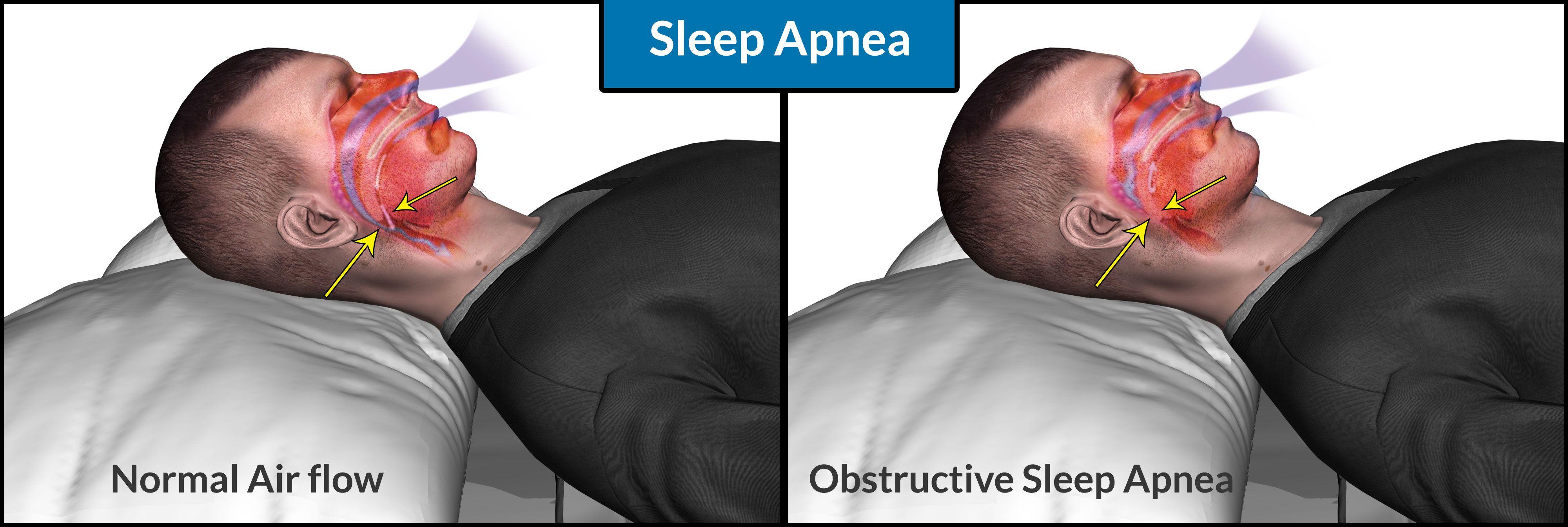 sleep apnea causes symptoms dangers self treatment cpap therapy treatment - Sleep Apnea Pillow