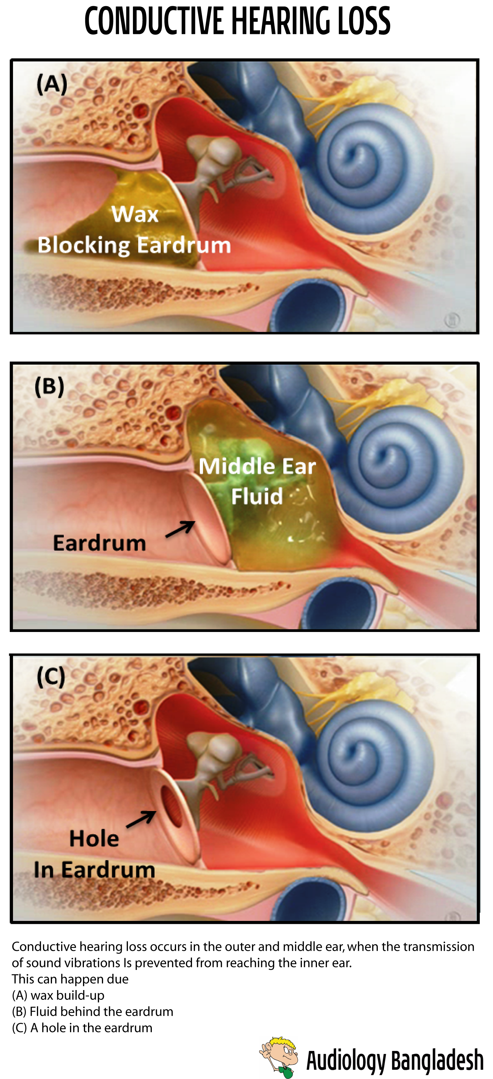 Conductive Hearing Loss Conductive Hearing Loss Occurs In