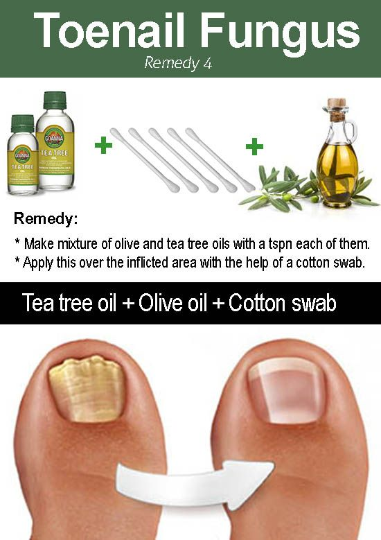 10 Amazing Ways To Use Tea Tree Oil For Toenail Fungus With
