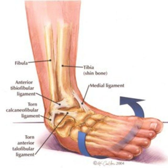 Friday Focus Sprainingtearing The Lateral Ligaments Of The Ankle