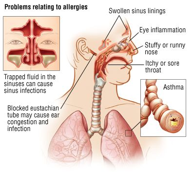 Understanding Respiratory Allergies Diagnose And Treatment Halosense Salt Therapy At Home Allergic Rhinitis Allergies Allergy Asthma