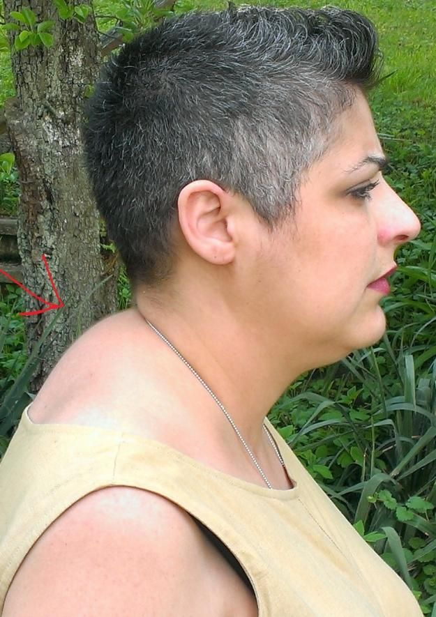 how to get rid of buffalo hump neck