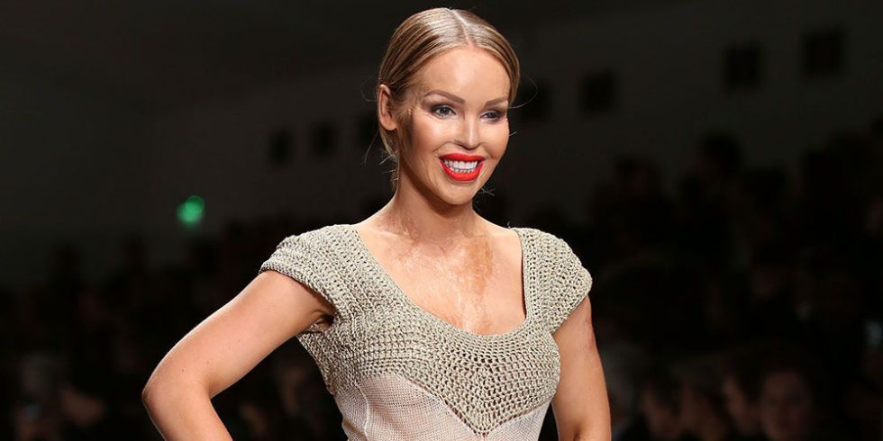 """Katie Piper: """"If I stayed angry after my attack, who was I really punishing?""""  - Cosmopolitan.co.uk"""