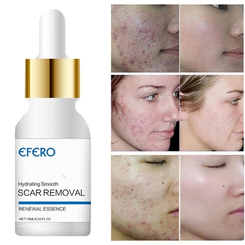Scar Retreat Cream Serum.Efero 15ml Acne Scar Removal Face Serum Essence Whitening Repair