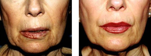 Apply These Facial Gymnastics Routines To Lift And Trim Down Plump Cheeks, And Erase Face Wrinkles