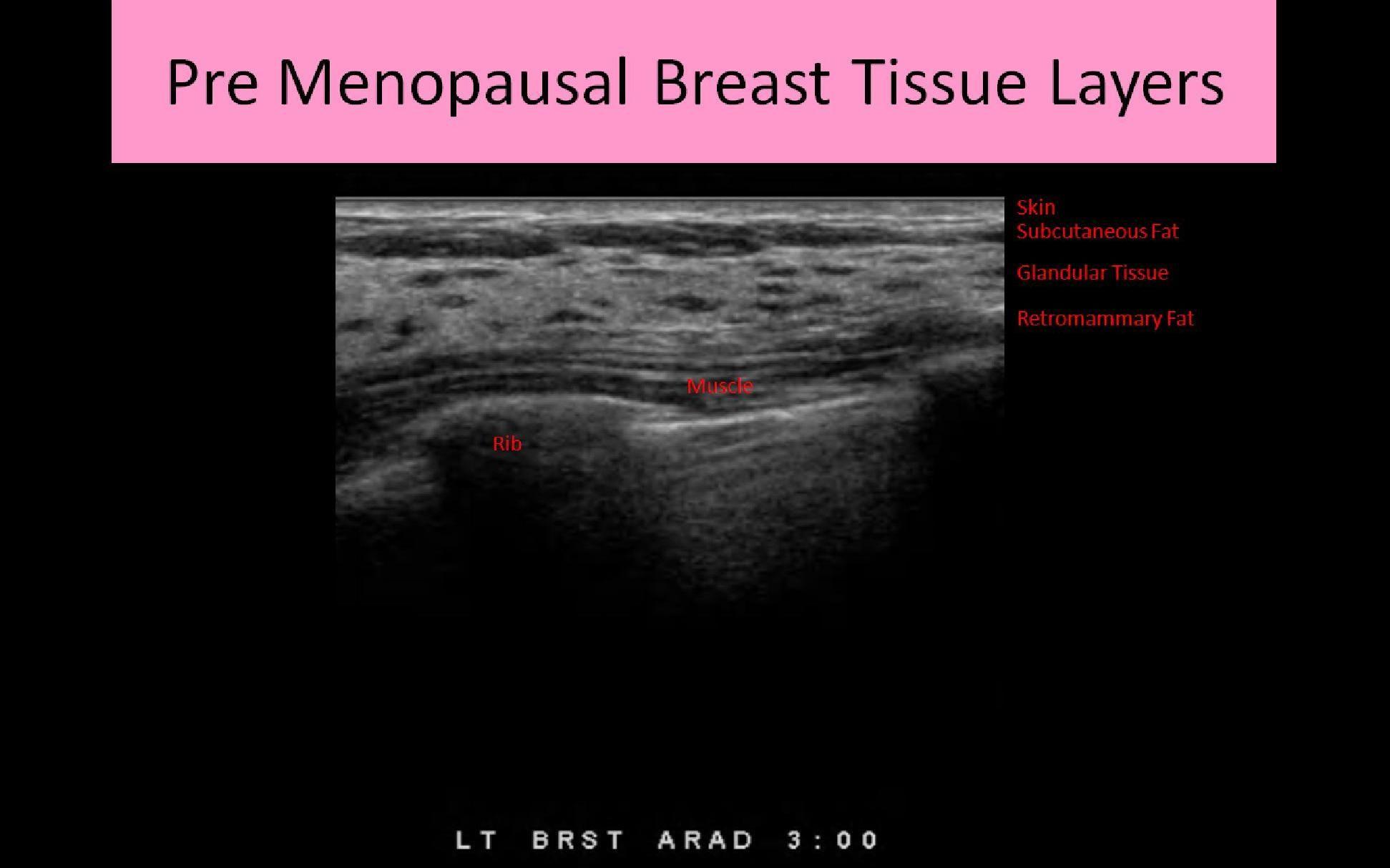 Breast ultrasound cme online