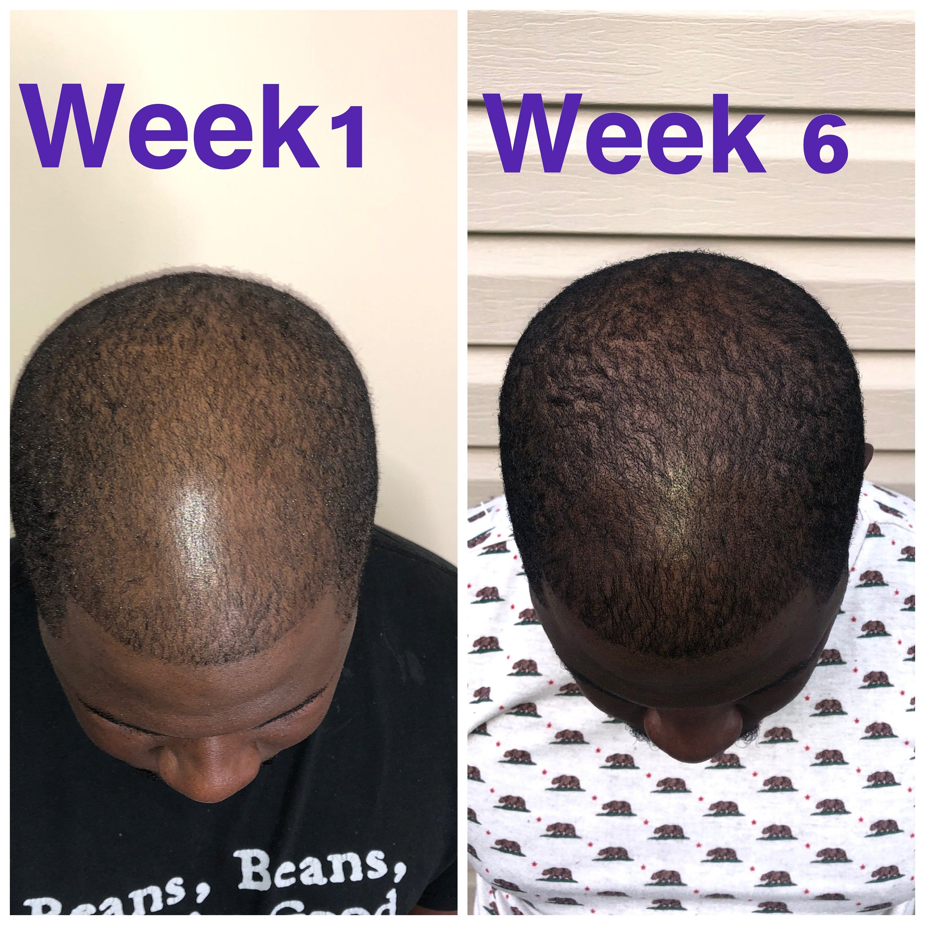 Hair Growth Serum Oil for Hair Loss and Thinning hair | Etsy