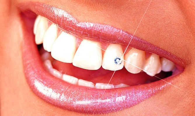 Dental Piercing This Is A Thing Tattoos And Piercings Tooth