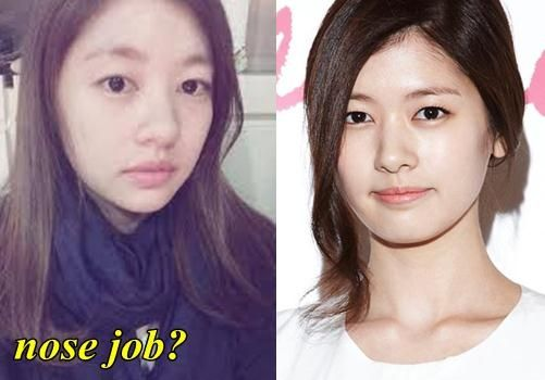 Fact Or Rumor Seo Hyun Do Plastic Surgery Did Any Of Snsd Not