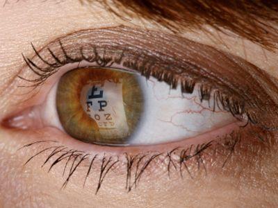 Eyecare Ojos Bonitos Ojos