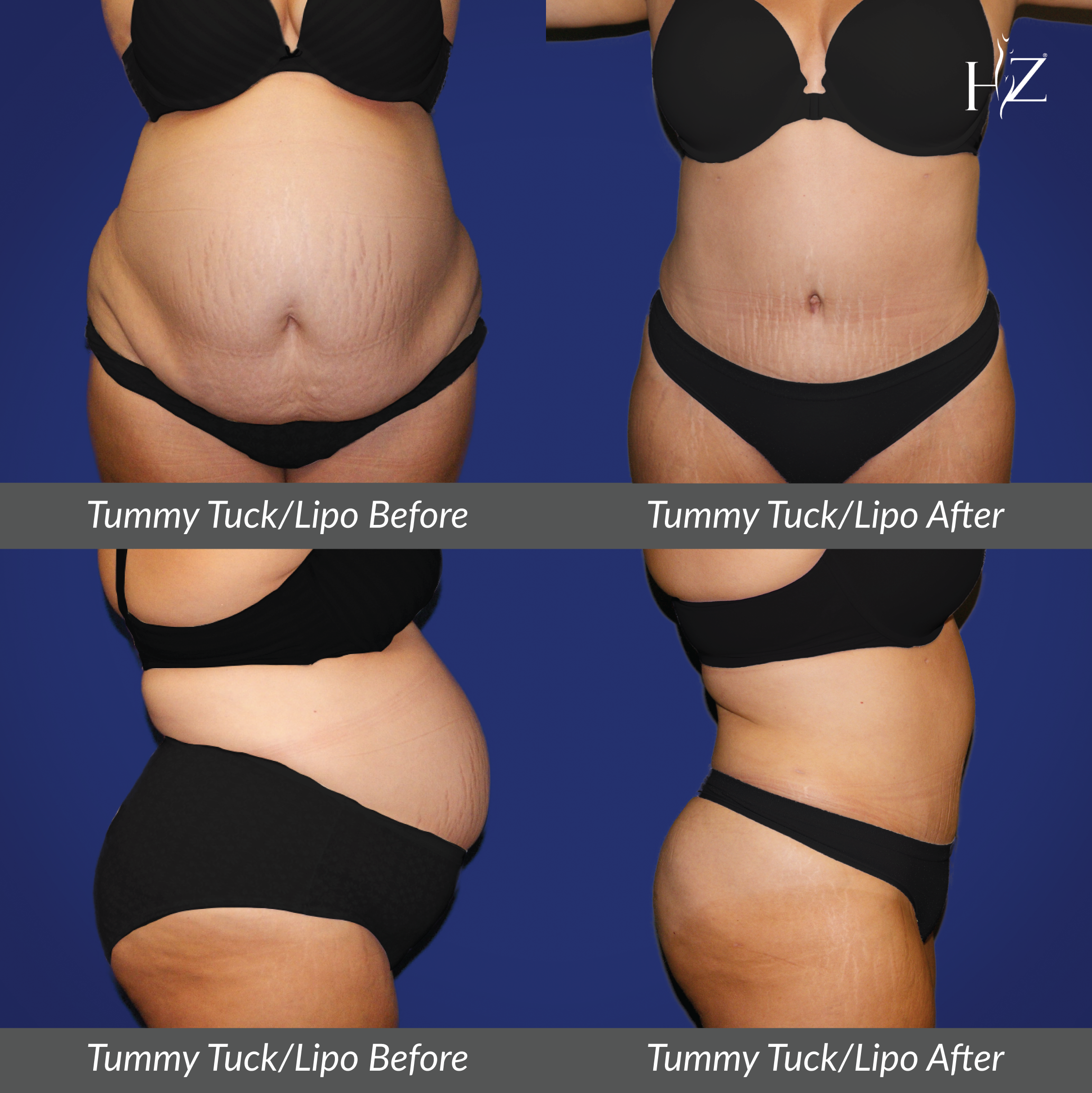 Dr Z At Hz Plastic Surgery In Orlando Performed A Tummy Tuck And Liposuction Our Patient Is 3 Months Post Tummy Tucks Tummy Tuck Before After Plastic Surgery