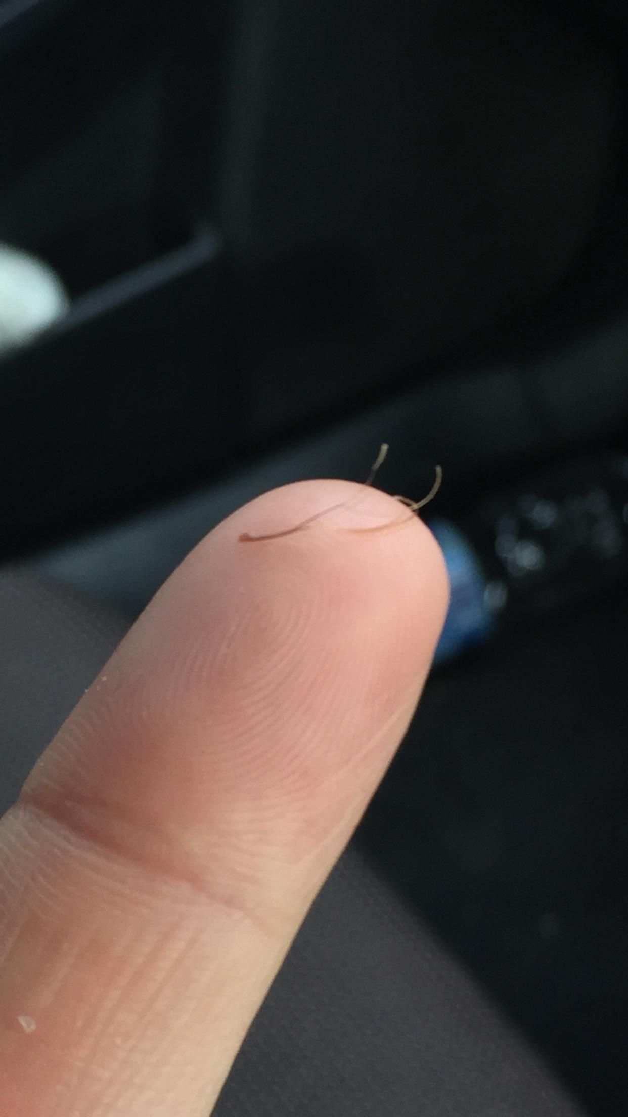 Multiple hairs growing out of one follicle
