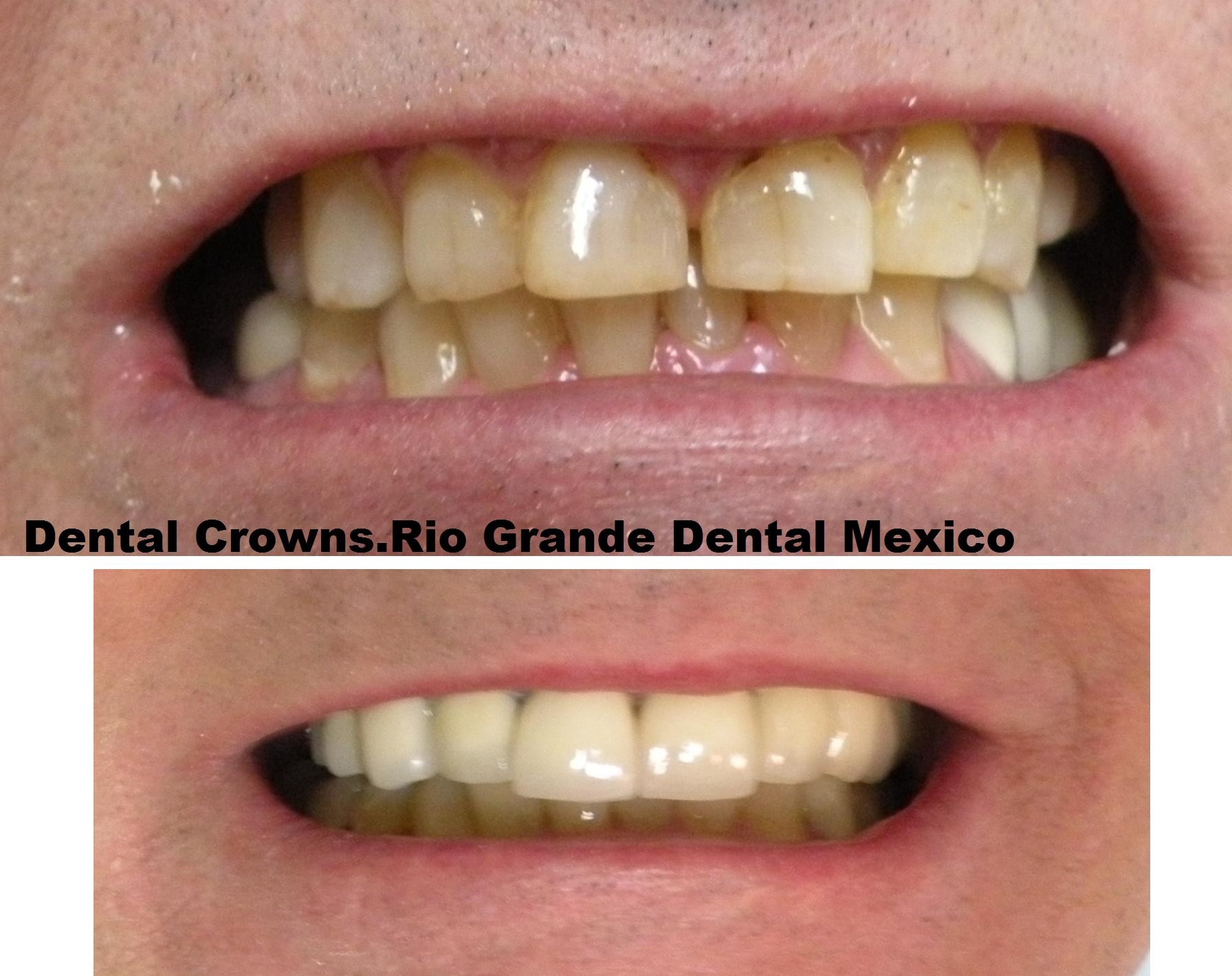 Porcelain fused to metal crowns (or PFM crowns)  Metal crown