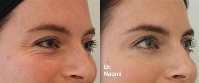 Before and after injections for eye wrinkles and under eye ...