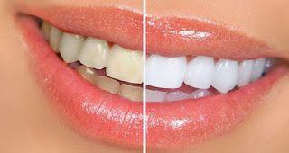Cara Menghilangkan Nikotin Di Gigi Cara Menghilangkan Nikotin Dalam