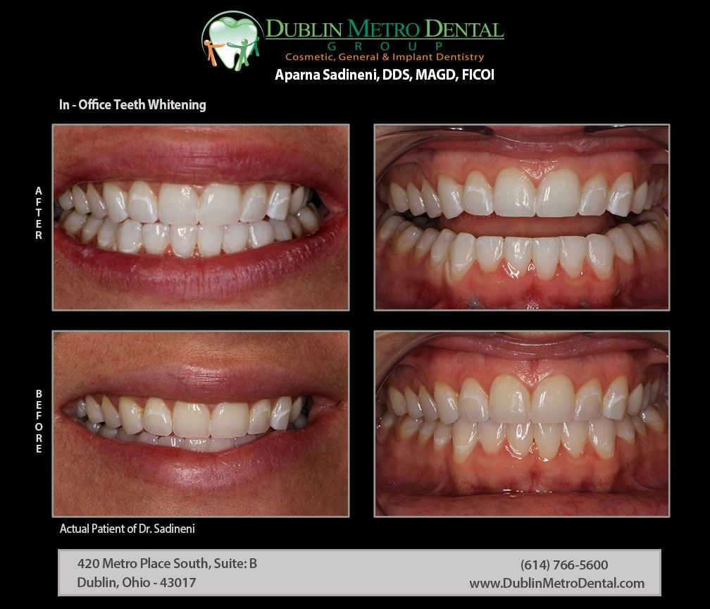 In Office Teeth Whitening Smile Even Brighter On Your Special Day