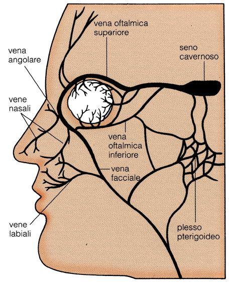 Risultati immagini per seno cavernoso   maxilofacial surgery ...