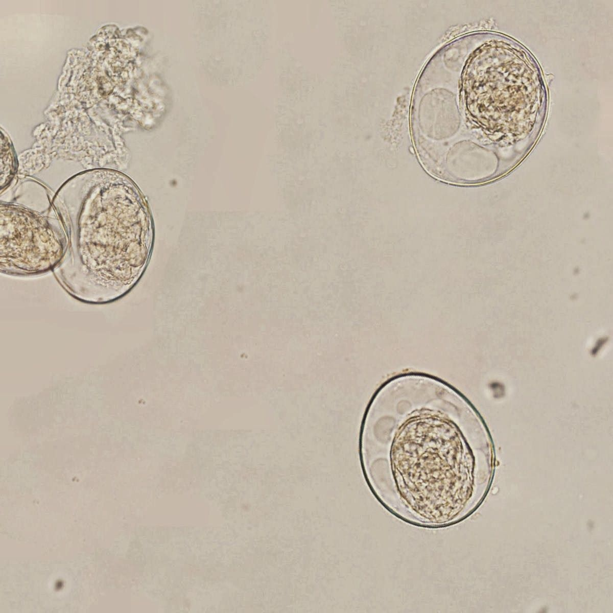 Sunday Parasitology Quiz - Can you identify these particles