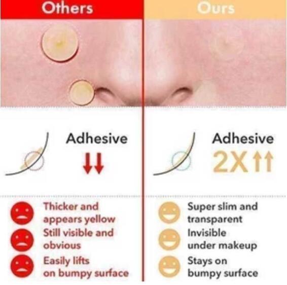 Skin Tag Acne Patch 24 Pcs Modvivi Skin Tag Removal