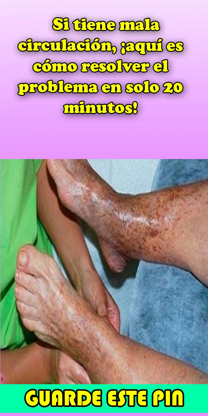 te para la mala circulacion de las piernas