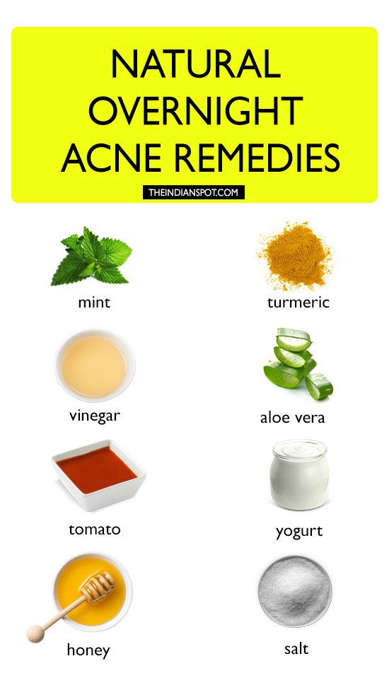 Natural Overnight Remedies Clear Acne Overnight Clear Acne