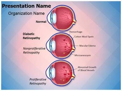 retinopathy diabetic retinopathy powerpoint template is one of the, Modern powerpoint