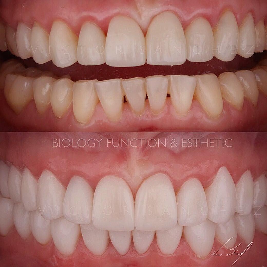 Rehabilitación bucal completa en restauraciones en cerámica bajo mínima invasión... Fotografía tomada inmediatamente después de la cementación.  Full mouth rehabilitation in ceramic restoration... Photo taken immediately after cemented... #dentistry #estheticdentistry #fullmouthrehabilitation #ceramic #victorsanchez #lifestyle #passion #livewithpassion by odvictorsanchez Our General Dentistry Page: http://www.myimagedental.com/services/general-dentistry/ Google My Business…
