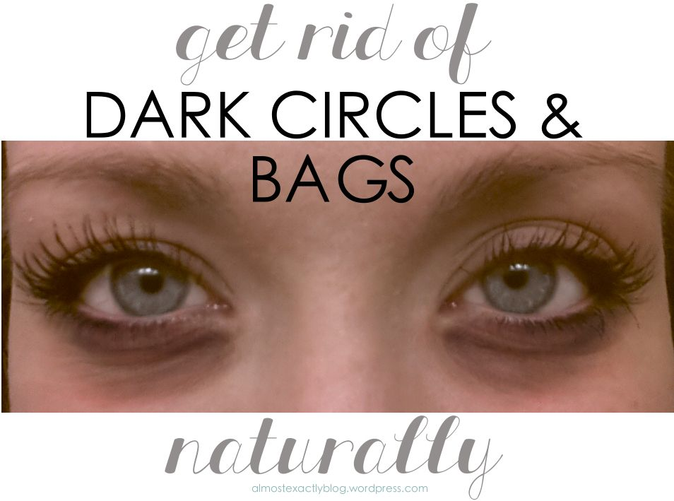 natural remedies for under-eye circles & bags | Undereye ...