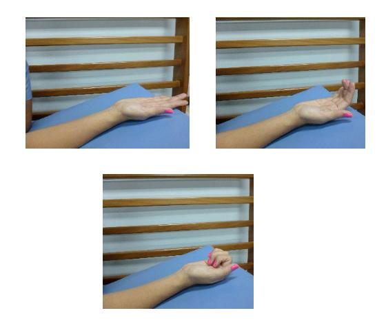 Tendinitis de quervain tratamiento kinesico