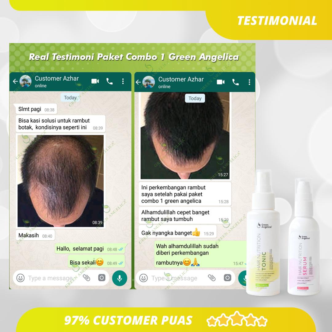 Tumbuhkan Rambut Lebih Lebat Dengan Hair Nutrition Tonic Penumbuh Rambut Botak Terlaris Di Shopee Pertumbuhan Rambut Rambut Produk Perawatan Kulit