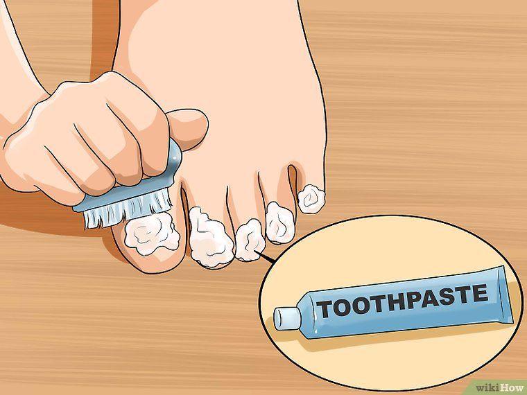 Get rid of yellow toenails yellow toe nails toe nails