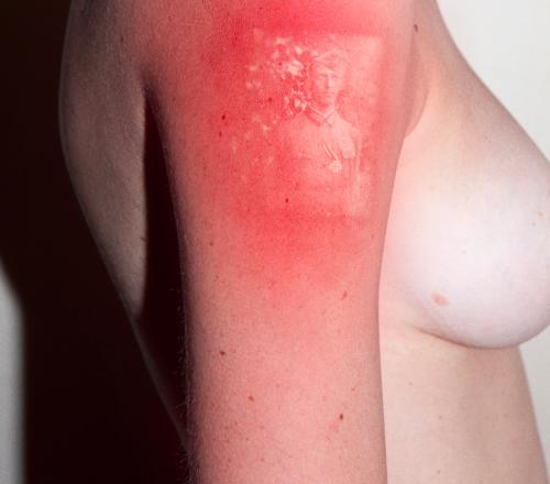 Beskt Thomas Mailaender Photography On Skin Using Negatives And A Uv Photography Sunburn Art Skin