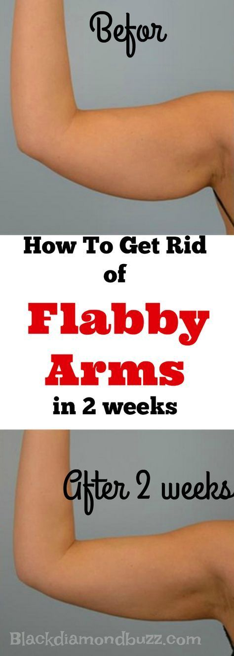 How to lose weight in your arms fast in a week 7 top tips how to get rid of flabby arms this summer easy best exercises to lose your arms fat and tone your arm fast this will also help you to tone reduce flabby ccuart Choice Image