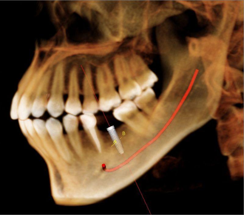I-CAT Image Gallery : Cone Beam 3D-Dental Cone Beam CT : I