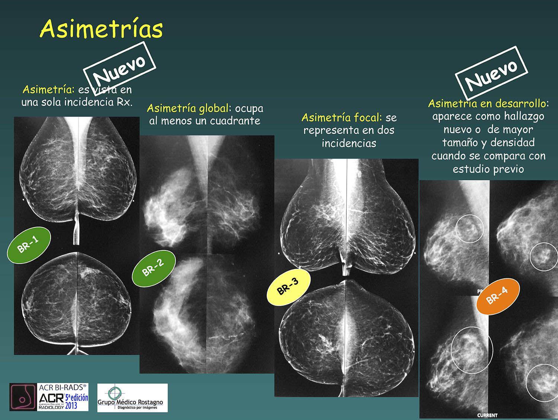 prostata calcificaciones