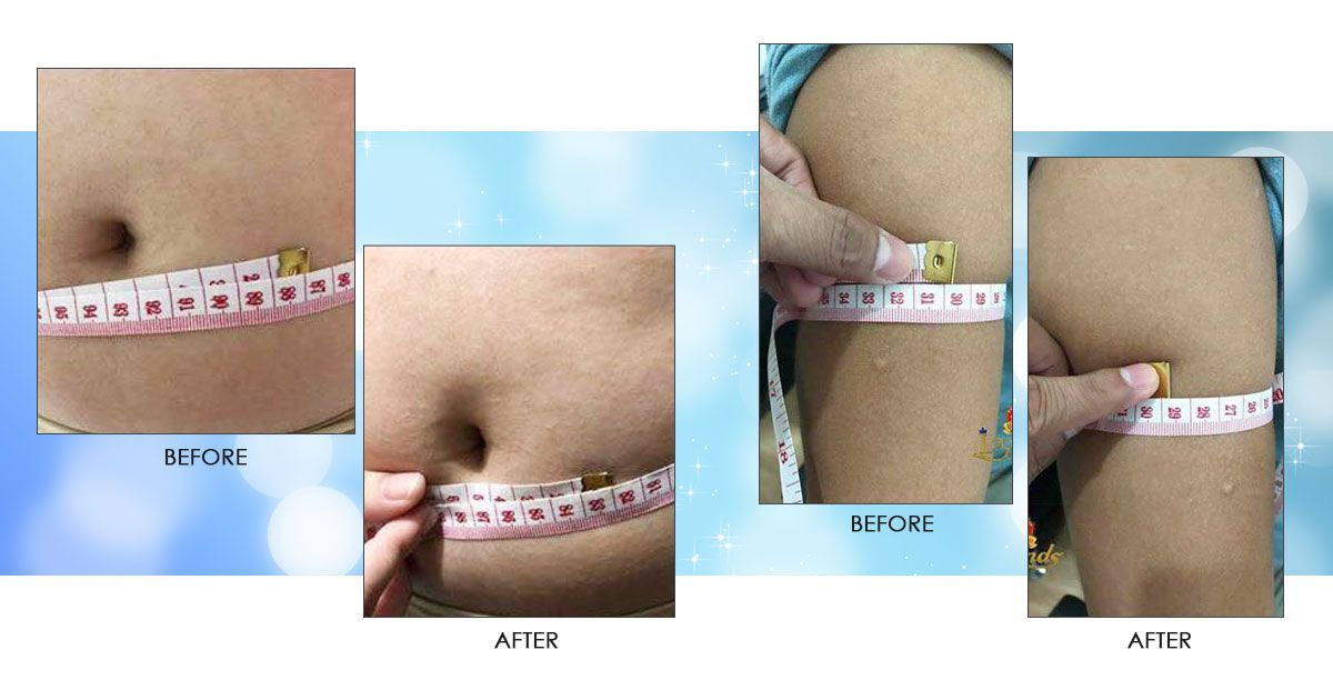f1cd559e5f NBody Body Gel for Instant Slimming of Fat Prone Areas