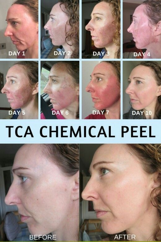 My experience under going a TCA chemical facial peel. Before and after chemical  peel.