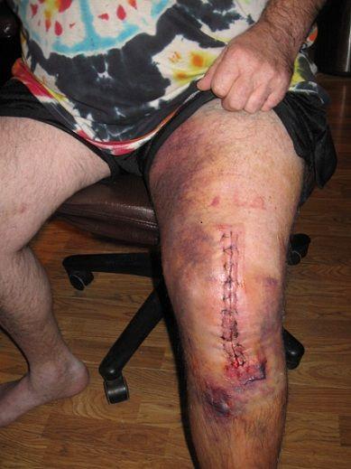 3 Days Post Op Dec 8 2011 Knee Replacement Scars