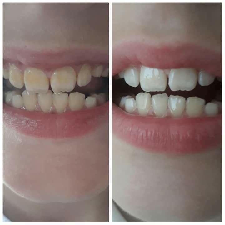Pin on HOT SELLING WHITENING TOOTHPASTE