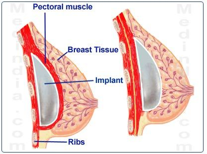 Pin On Breasts And Women Health