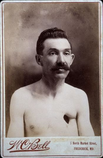 Reverend Eavens - The Man With A Hole in His Chest - 1900